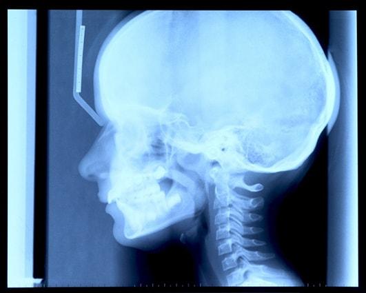 head-and-brain-injuries